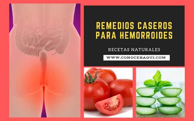 remedios caseros para curar las hemorroides externas