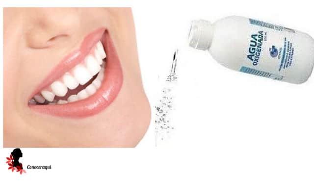 como usar el agua oxigenada para dolor de muelas