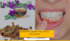 remedios caseros para desinflamar las encías