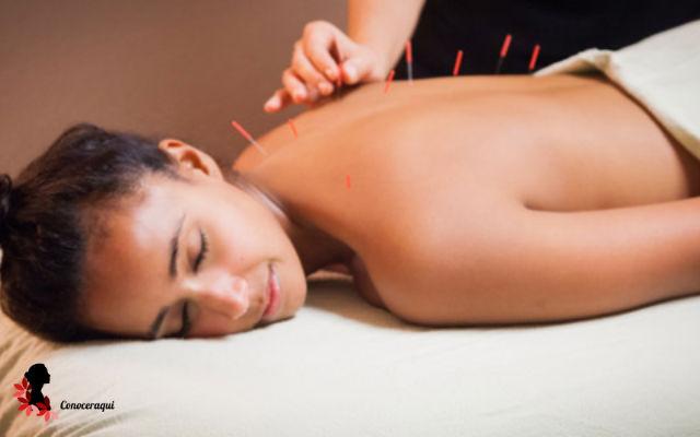 acupuntura tratamiento para dolor de espalda