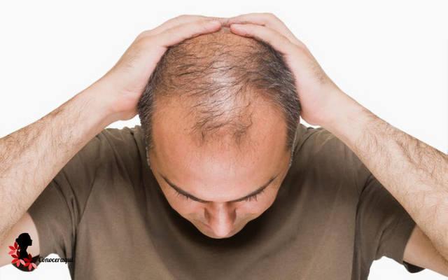 alopecia en hombre como prevenir