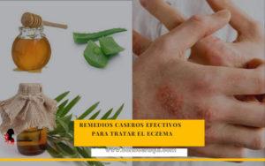remedios caseros para dermatitis etopica en adultos