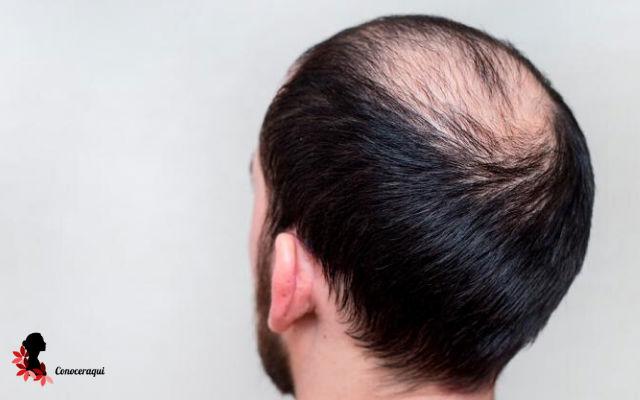 tratamiento para la alopecia en hombres